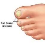 fungal-nails